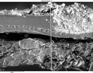 membrane autopsies